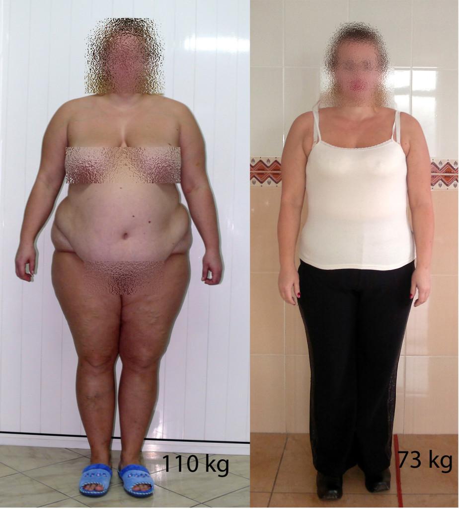 obezitate.md