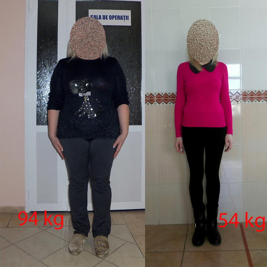 obezitate slabire kg dieta 1