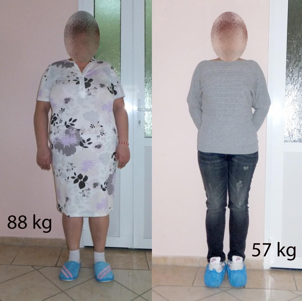 www.obezitate.md obezitate slabire diabet kg