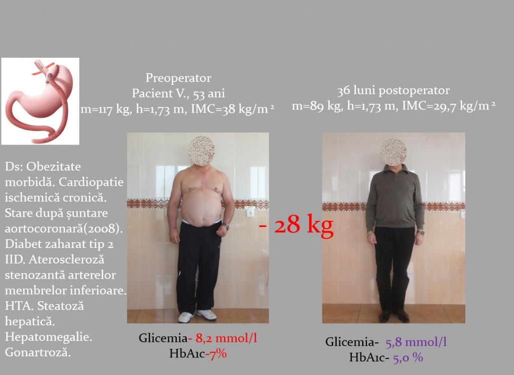 diabet zaharat tip II obezitate morbida